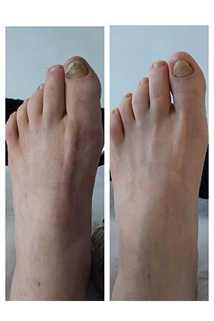 fungal toe